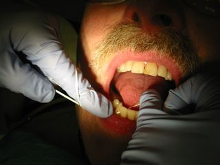 Dental_flossing