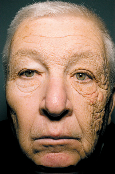 Face on UV Radiation