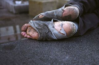 Homeless-feet